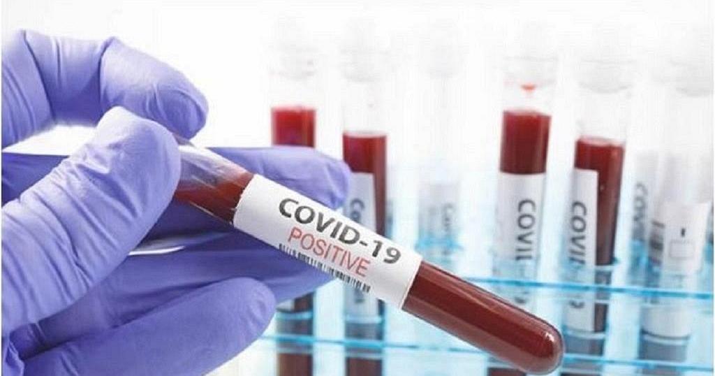 800 COVID-19 samples contaminated - Nuguchi 46