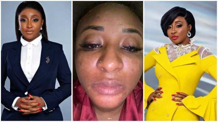 Video: Ini Edo Reveals How She Became Depressed Over Her Skin Damage. 1